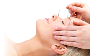 Acupuncture - Chinese Medicine Eastbourne